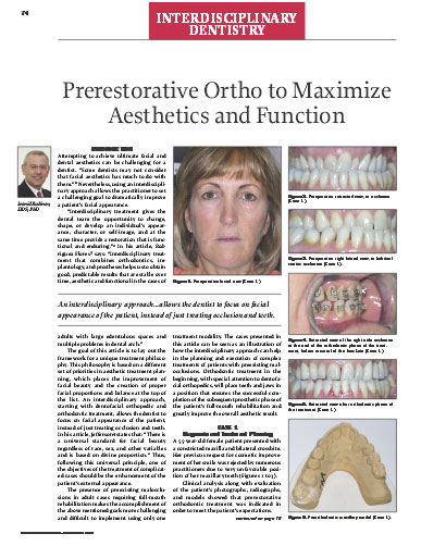 Prerestorative Ortho to Maximize Aesthetics and Function