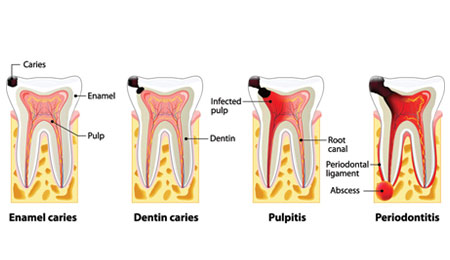 Stages Of Caries Development