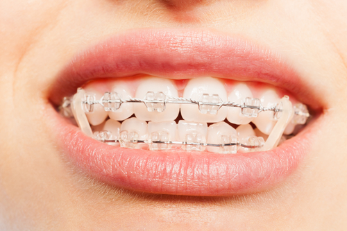 How Do Orthodontic Elastics Work Real Smile Dental