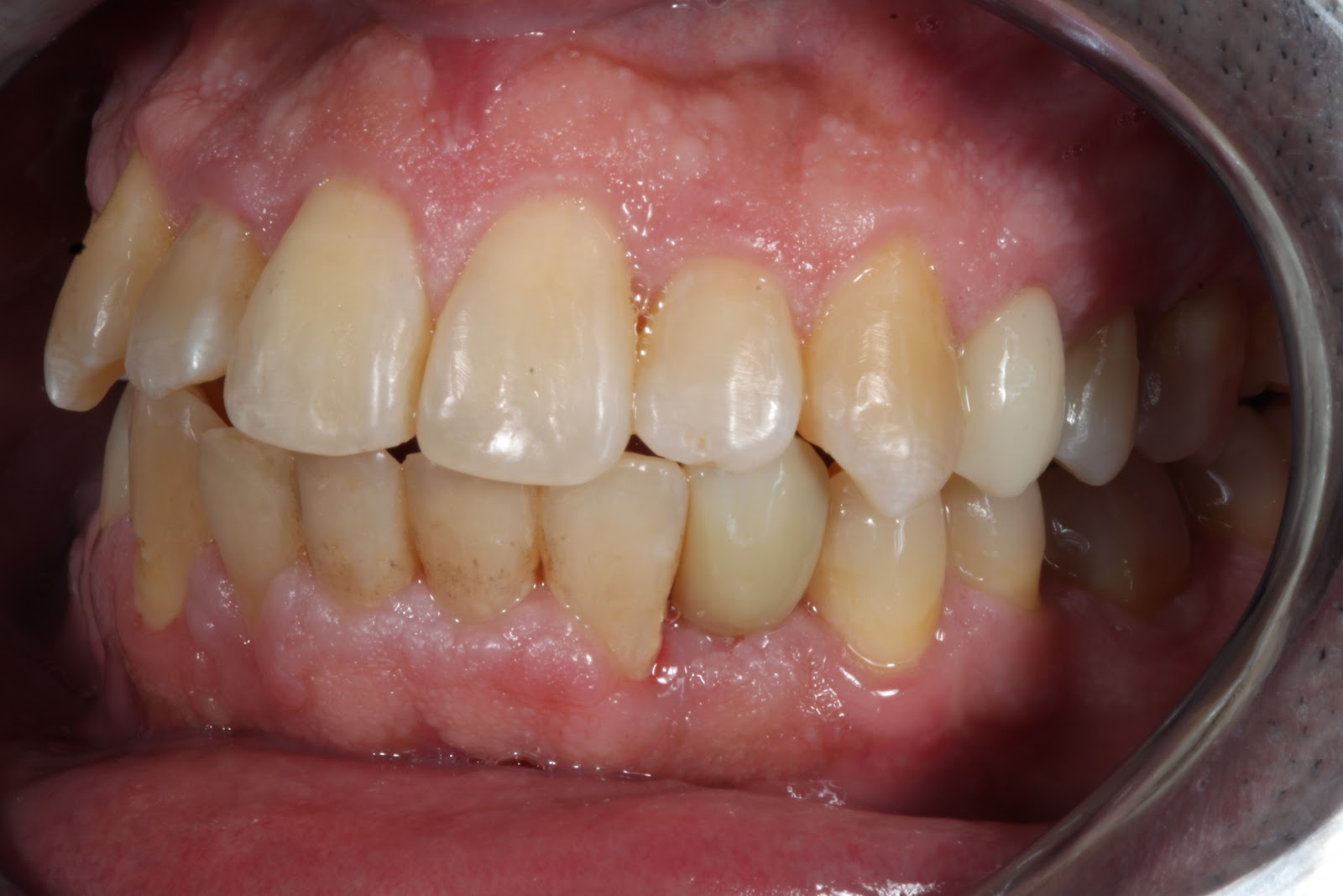 orthodontices procedure image