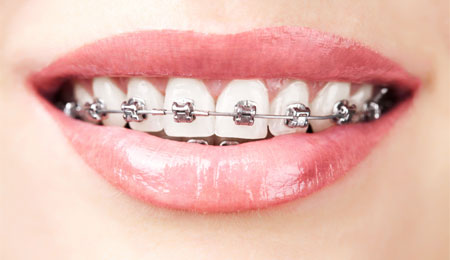 Retainer & Braces Complications